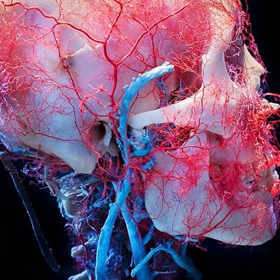 """Remarkable photo by James Bareham of the arteries, veins, and capillaries of the human head from the famous """"Bodies: The Exhibition,"""" which opened in Tampa, #Florida in 2005. It is similar to, though not affiliated with, The Body Worlds Exhibition. The facial vessels have been preserved using a process called plastination, first developed by Gunther von Hagens in 1977. The water and fat are replaced by certain polymers (plastics). For more on this process, see link in comments. #bodyworlds…"""