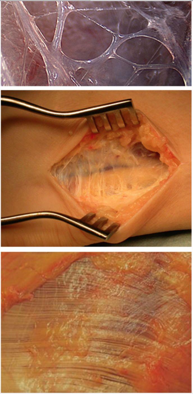 Health Benefits Of Myofascial Release Skin Rolling Autos