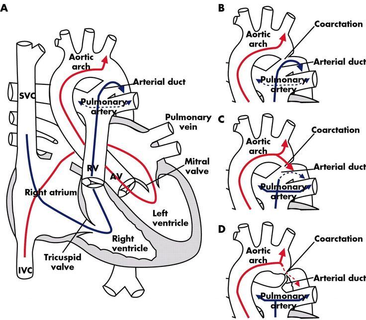 heart flow diagram blank - Google Search