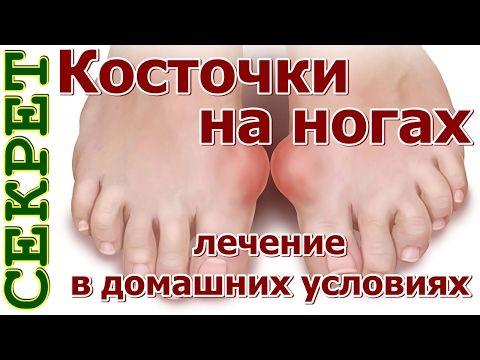Косточки на ногах: эти 4 натуральных средства эффективно выведут соли и быстро избавят от боли! - Страница 2 из 2