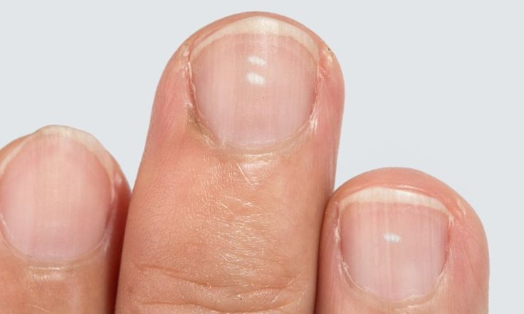 Having white spots on your fingernails could mean one of many possible health concerns. In this article we will look at the possible causes of white fingernail spots and if you need to talk to your medical professional about your symptoms.  #healthnews #powerofpositivity #allabouthealth #fingernails