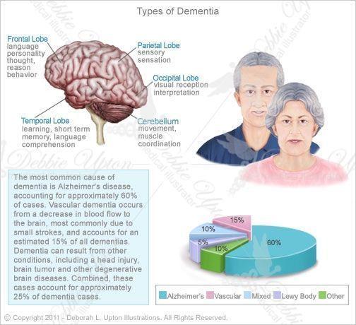 Types of Dementia | Types of Dementia #Whatisdementia? #Typesofdementia