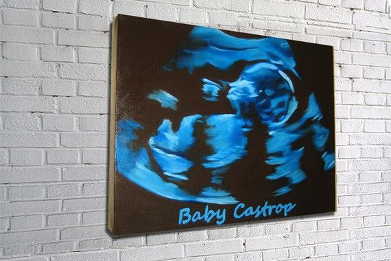 Hey, I found this really awesome Etsy listing at https://www.etsy.com/listing/60020082/custom-hand-painted-baby-ultrasound....this is pretty awesome