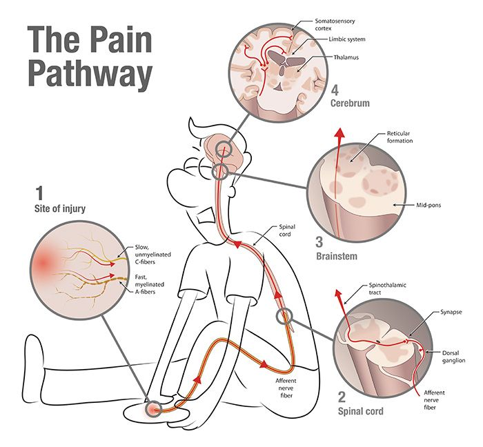 the pain pathway infographic preventing chronic pain. Black Bedroom Furniture Sets. Home Design Ideas