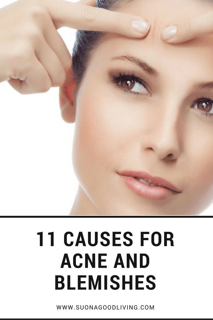 Skincare and Acne Tips: 11 causes for acne and blemishes. Find out more at: https://www.suonagoodliving.com/ #suona