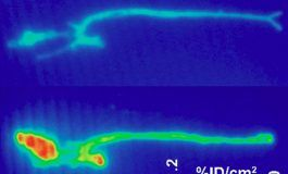 New Nuclear Tracer to Help Better Manage Abdominal Aortic Aneurysms