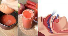 Durant la nuit, le ronflement est une habitude répulsive que tout le monde redoute, mais elle n'est pas incurable… Une personne ronfle trop à cause de l'accumulation du mucus dans son nez et sa gorge. Donc, l'ultime moyen d'arrêter de ronfler est de savoir comment diminuer ce mucus qui est derrière cette habitude gênante. Pour …  lire la suite / http://www.sport-nutrition2015.blogspot.com