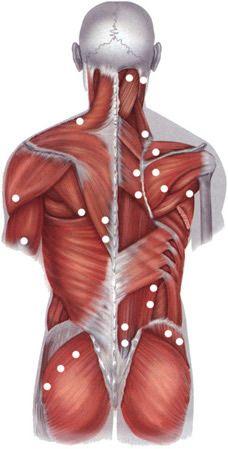 Localización de los puntos gatillo mas comunes en la fibromialgia (dolor muscular) en osteocondrosis de la espina torácica     Osteocondrosis: Enfermedad propia de los niños en la que se produce una degeneración y necrosis de los centros de crecimiento de los huesos, y una posterior regeneración y recalcificación