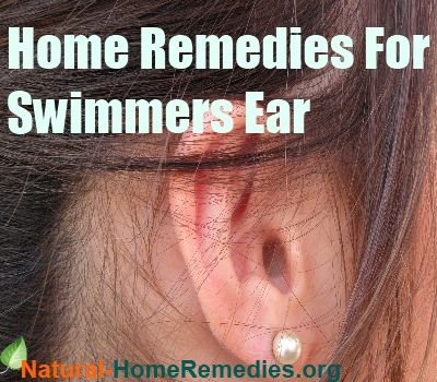 1000 ideas about swimmers ear treatment on pinterest swimmers ear ear infection home for What causes ear infections from swimming pools