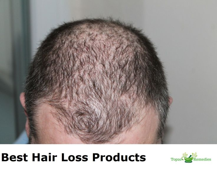 The article 'Best Hair Loss Product' is helpful to those men/women who are going bald. After reading this article you will be able to identify your hair problems and may help you as well as others to prevent hair loss. This will help you in developing a healthy society How to identify best hair...