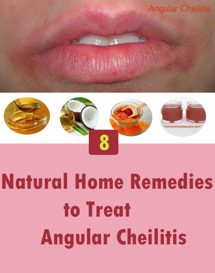 Natural Remedies For Bacterial Infections In Mouth