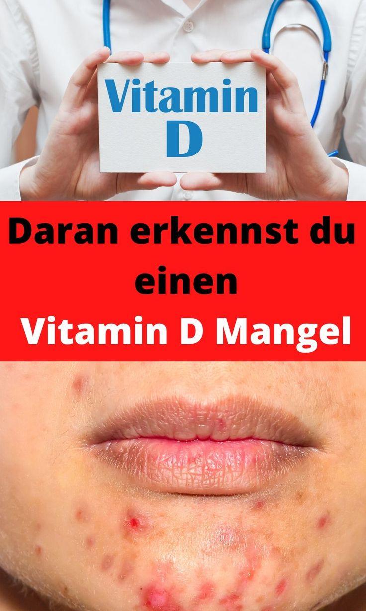 Anzeichen Vitamin B12 Mangel