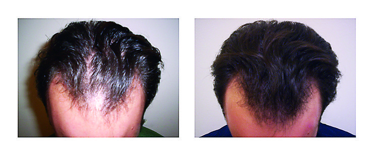 After Using the Laser Hair Therapy. Look at his results!