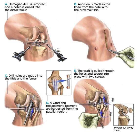 Best 25 Cruciate Ligament Tear Ideas On Pinterest Anterior Cruciate Ligament Tear Cruciate