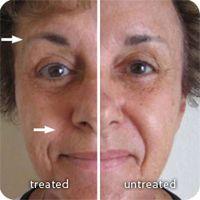 Galvanic Spa - reduced nasolabial fold  www.stevematilda.nsedreams.com  ID: US0479534