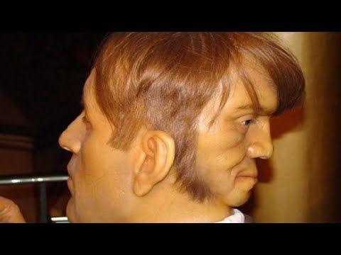 10 Osób, które mają ekstra dodatkowe części ciała - YouTube