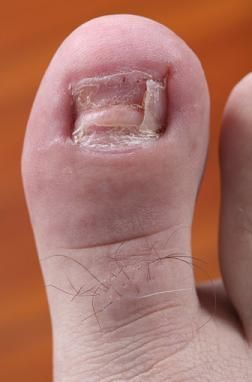 Best Toenail Fungus Treatment.  ick.  did they have to use this pic?!?