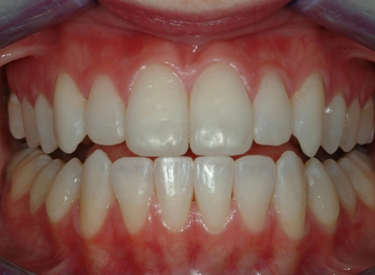 Minimally invasive dentistry- After treatment: Non invasive technologies did not require reduction of tooth structure.