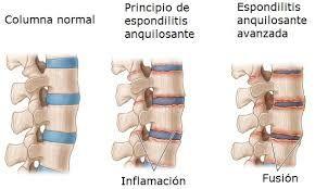 La #espondilitisanquilosante (AS, por sus siglas en inglés) es una forma crónica de #artritis. Afecta mayormente los huesos y las articulaciones en la base de la columna, donde ésta se conecta con la pelvis. Estas #articulaciones resultan inflamadas e hinchadas. Con el tiempo, las  #vértebras afectadas se pueden unir.  https://farmaciamoralesblog.wordpress.com/2017/10/11/15930/ https://www.facebook.com/farmacia.doctora.morales