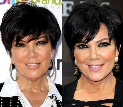 Kris Jenner Plastic Surgery Before and After Photos Nose Job, Facelift and Breast Implants 2