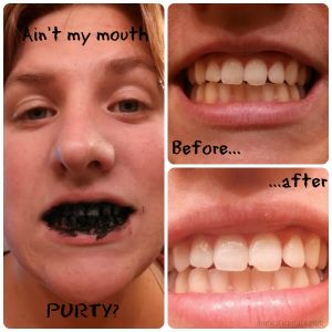 i used charcoal to whiten my teeth go green charcoal teeth whitening teeth whitening. Black Bedroom Furniture Sets. Home Design Ideas