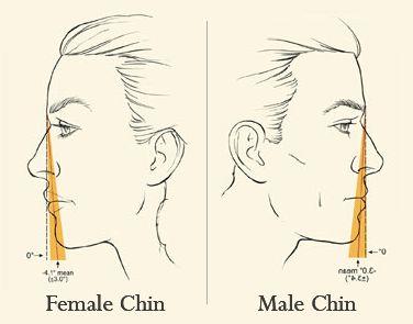 Chin Augmentation Example (Male & Female)