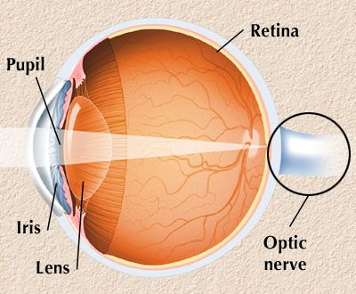 The optic nerve is a bundle of nerve fibers that serves as the communication cable between your eyes and your brain. Optic neuritis is an inflammation of the optic nerve, the bundle of nerve fibers that transmits visual information from your eye to your brain. Optic neuritis is highly associated with multiple sclerosis, a disease that causes inflammation and damage to nerves in your brain and spinal cord.