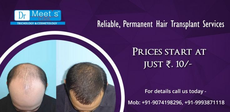 Now a days, due to stressful lifestyles and routines, most of the men and women are suffering from most common problems that is hair loss. There are so many Trichology clinics available in Indore who figures out the possible reasons behind a patient's #hair-loss problem and recommend treatments based on their condition and texture.