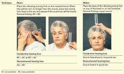 Weber and Rinne tests: Used to evaluate hearing loss. Journal article citation: Ruppert, S. D., & Fay, V. P. (2012). Tinnitus evaluation in primary care. The Nurse Practitioner: The American Journal of Primary Health Care, 37(10), 20-26. Retrieved from http://www.nursingcenter.com/lnc/cearticle?tid=1436010