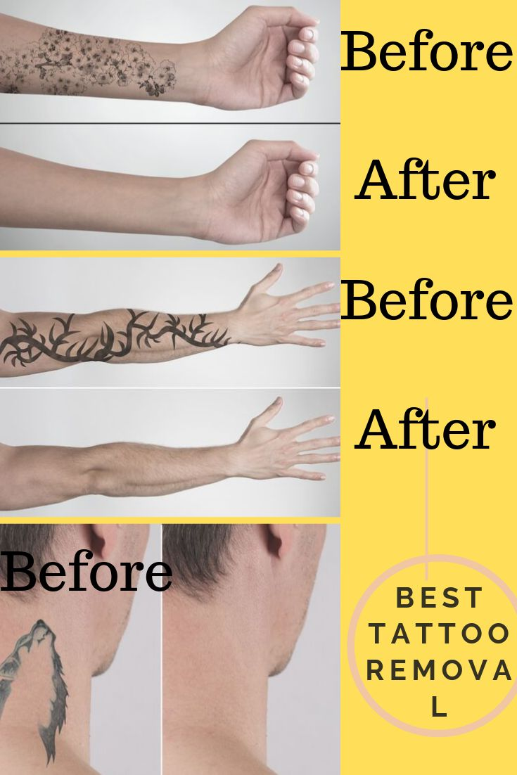inked up tattoo removal cream before and after