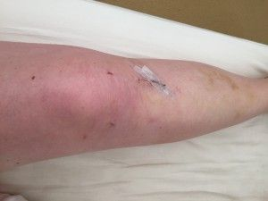 ACL Recovery – Month One www.myhometruths.com My journey recovering from ACL reconstruction surgery. Here's how I survived Month One.