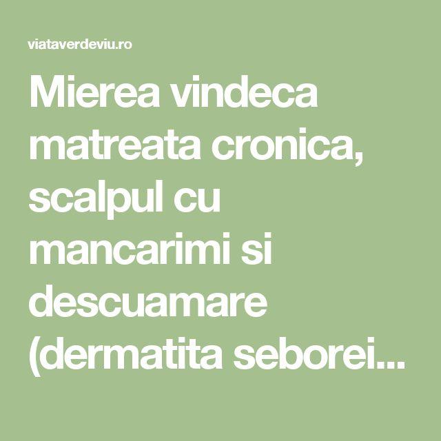 Mierea vindeca matreata cronica, scalpul cu mancarimi si descuamare (dermatita seboreica) | ViataVerdeViu.ro