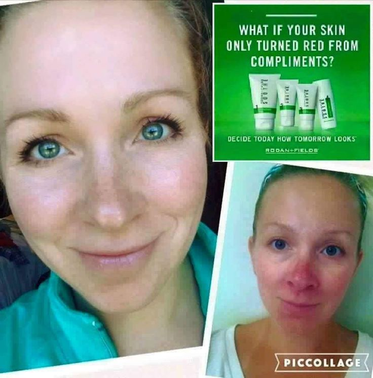 "Here is what Marian Morse said about her 60 Day results with Rodan Fields SOOTHE! ""Once again I'm floored you guys! This is a picture of me this morning -- mascara and nothing else! I literally went about my daily routine with NO foundation NO mineral powder NO concealer -- NOTHING!!! I had terrible skin growing up (concealer foundation powder was my normal routine) and would tan to try to make my skin less oily and help with the blemishes. I had tried over the counter products (both high…"