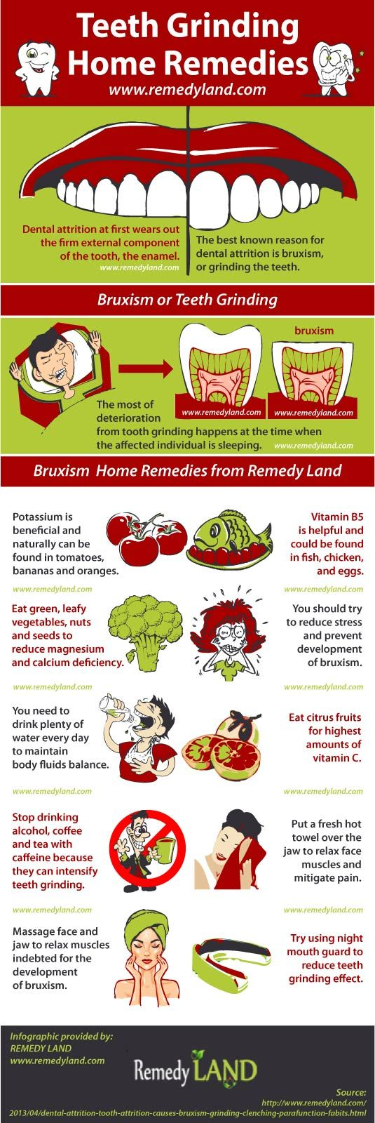Dental attrition or tooth attrition causes: bruxism or grinding the teeth, clenching - parafunction habits - Remedy Land #bruxism #teethgrinding #homeremedies