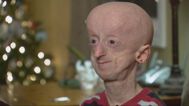 Devin Scullion's optimistic outlook on life, while living with a rare genetic condition, left a lasting impression on those he encountered in his short life.  The Hamilton man, who had the rare rapid aging disorderprogeria, died at the age of 20.