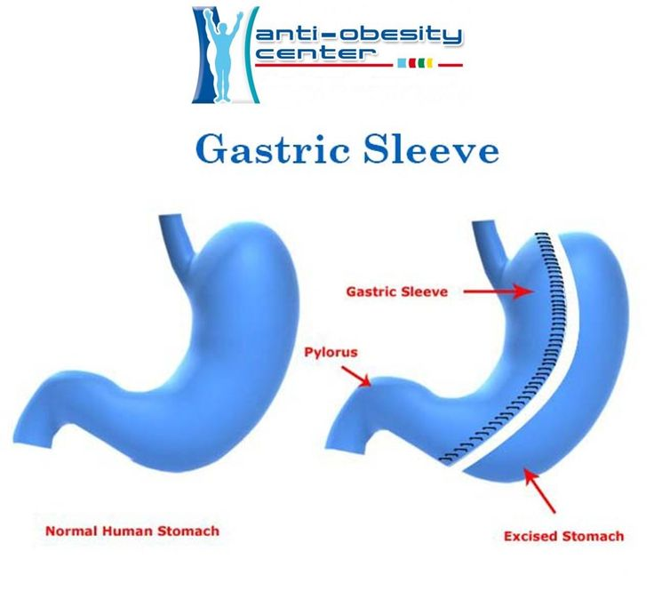 7 Best Gastric Sleeve Images On Pinterest Gastric Sleeve