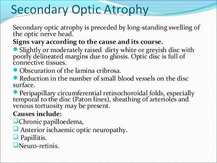 Image result for difference between primary and secondary optic atrophy