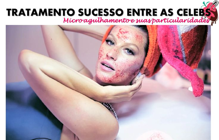 Microagulhamento: o tratamento estético que é sucesso entre as celebs.