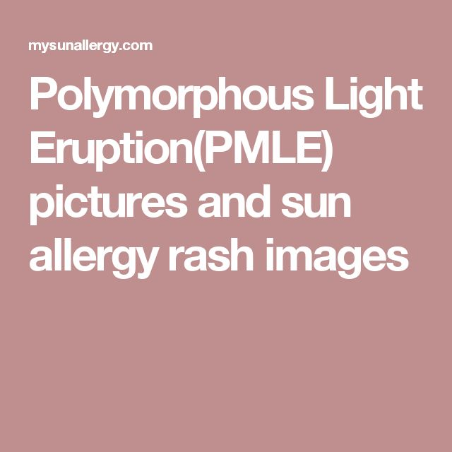 Polymorphous Light Eruption(PMLE) pictures and sun allergy rash images