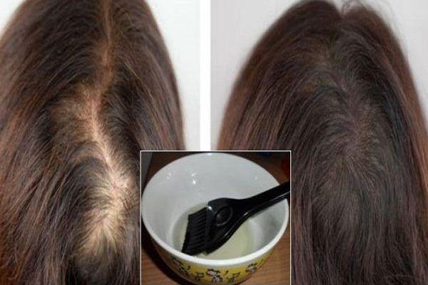 Одно масло, которое остановит выпадение волос и обеспечит рост густых длинных волос всего за 10 дней — БУДЬ В ТЕМЕ