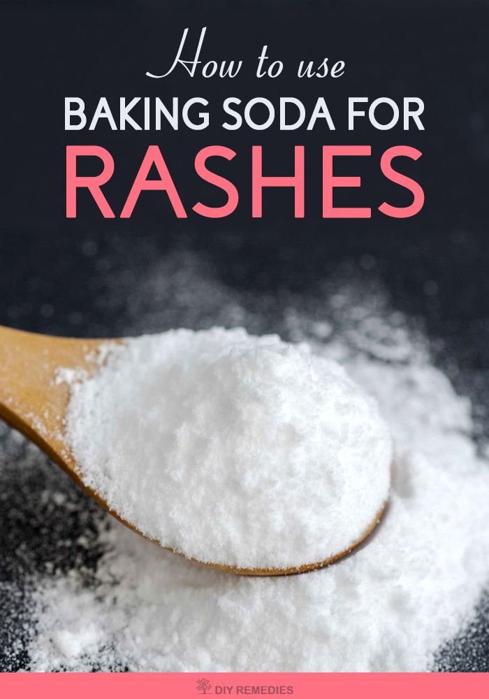 How to use Baking Soda for Rashes    Generally, rashes on the skin will appear due to many reasons like allergies, psoriasis, acne, insect bites, excessive sweating, eczema, mites or getting contact with certain poisonous plants, or using soaps, shampoos, detergents or cosmetics that doesn't suit your skin.