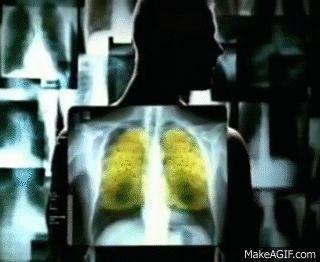 https://www.ntvg.nl/artikelen/nieuws/jaar-lang-roken-geeft-150-mutaties-iedere-longcel/volledig   https://newscientist.nl/nieuws/rook-50-sigaretten-krijg-longcelmutatie/   Jaar lang 1 pakje/dag roken geeft 150 mutaties in iedere longcel of Rook 50 sigaretten, krijg één mutatie per longcel