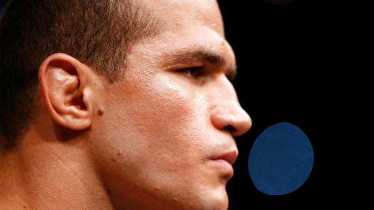 Junior Dos Santos injured, out of his fight against Stipe Miocic   FOX Sports on MSN