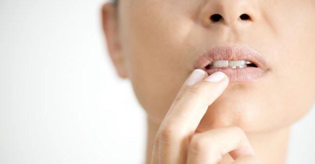 Autsch Eingerissener Mundwinkel Was Tun 5 Schnelle Sos Tipps Eingerissene Mundwinkel Hausmittel Lippen