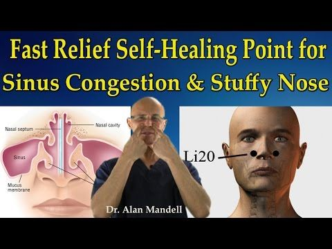 Fast Relief Self-Healing Point for Sinus Congestion, Stuffy Nose, Headaches - Dr Mandell - YouTube