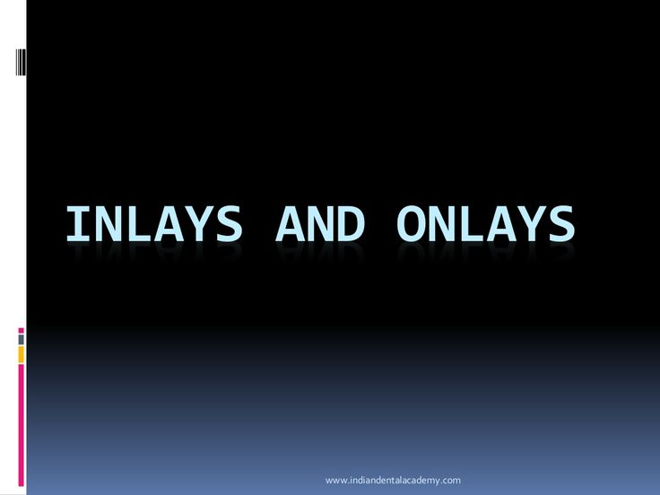 Inlays and o nlays. / implant dentistry course/ implant dentistry course by Indian dental academy via slideshare