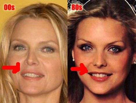 Plastic Surgery Celebrity pics | Lipstick Alley