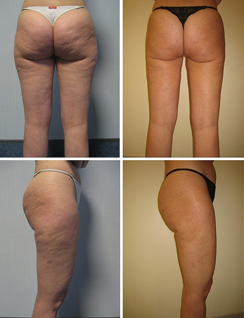 Best Natural Way To Get Rid Of Cellulite
