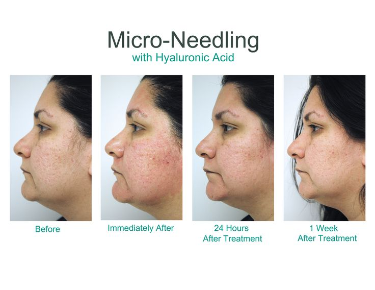 Micro Needling With Hyaluronic Acid Before During And