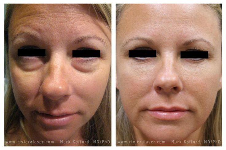 See The Difference In Quot Under Eye Bags Quot Injectible